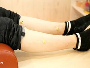 足にお灸をしている施術写真