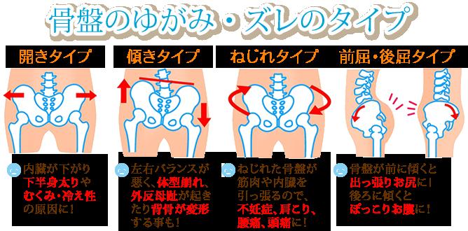 骨盤のゆがみ・ズレのタイプの図