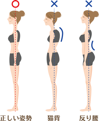 正しい姿勢・猫背・反り腰のイラスト